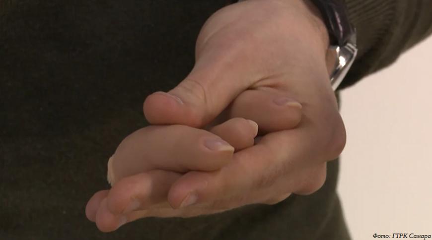 Ювелир из Тольятти занялся 3D-печатью пальцевых протезов