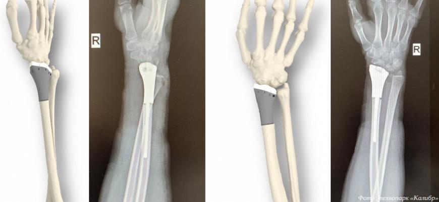 Компания «Эндопринт» запатентовала 3D-печатный эндопротез лучезапястного сустава