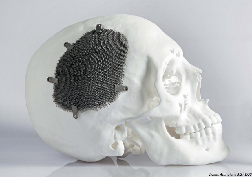 Резидент технопарка «Мосгормаш» стал сертифицированным производителем 3D-печатных имплантатов