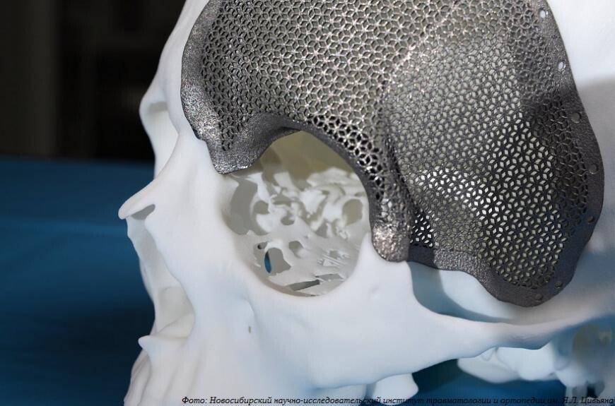 В России создается координационный центр по 3D-печати в медицине