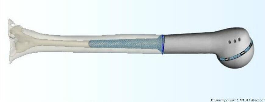Компания CML АТ Medical и Томский национальный исследовательский медицинский центр внедряют 3D-печатные онкоимплантаты