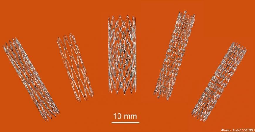 Австралийские ученые создают 3D-печатные стенты из никелида титана