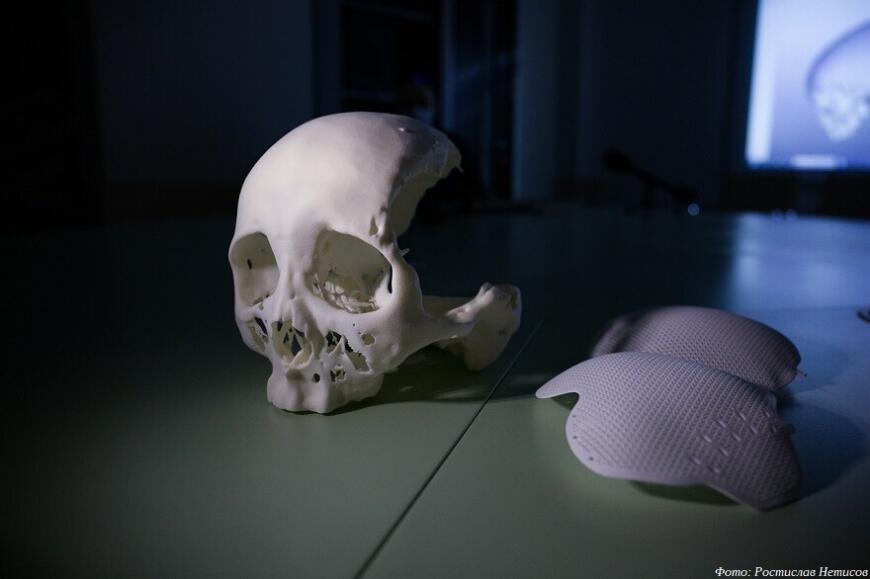 Новосибирские хирурги провели уникальную операцию по реконструкции черепа