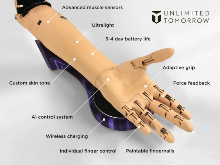 TrueLimb: 3D-печатные бионические протезы от Unlimited Tomorrow