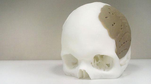 Что вам распечатать  Примеры использования 3D-печати в медицине 1b02561882a52
