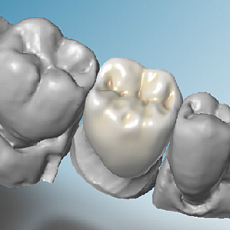 Dental Wings 3Series